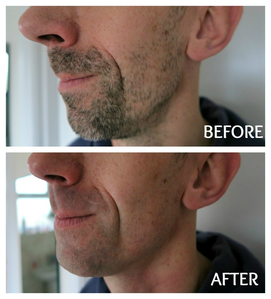 braun-series-9-before-and-after-1